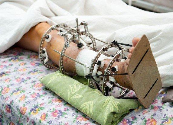 Лечение аппаратом Иллизарова