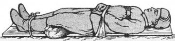 Больной лежит на носилках с фиксированной головой