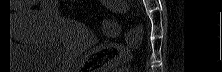 Рентген перелома копчика