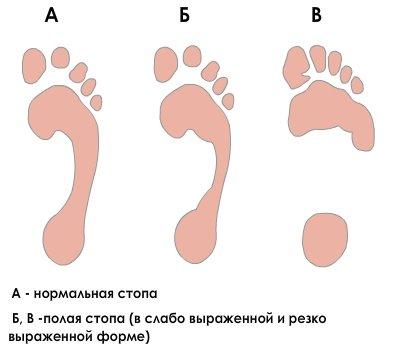 Плантография