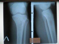 Рентген ноги с абсцессом Броди