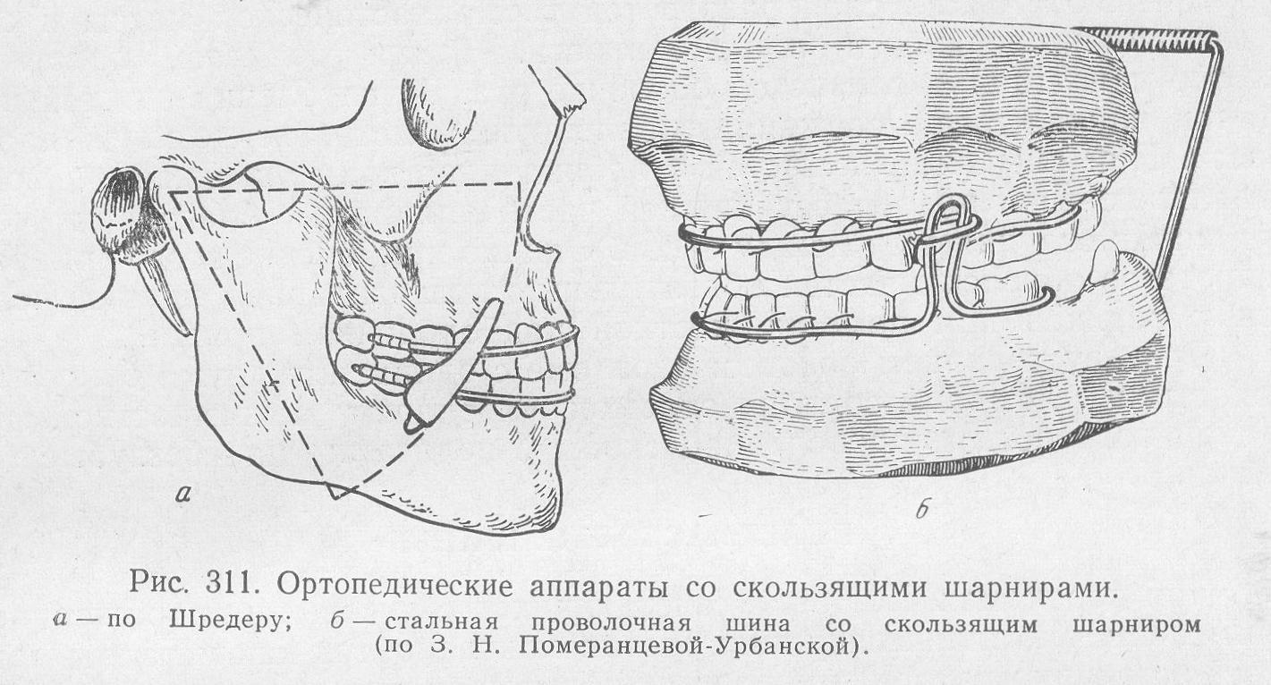 Способы лечения перелома верхней и нижней челюсти