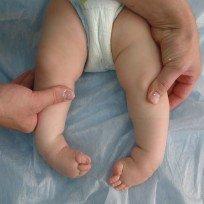 Особенности врождённой косолапости