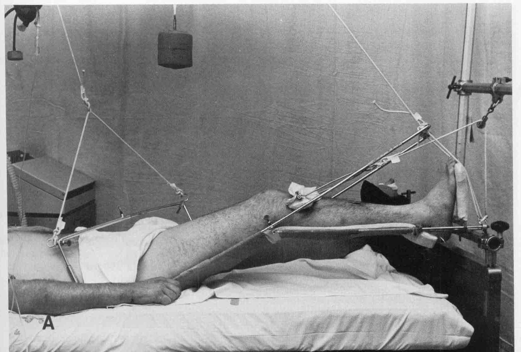 Первая помощь при переломах шейки бедра