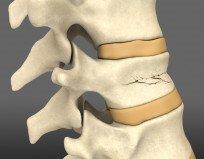 Компрессионный перелом позвоночника: лечение, причины, симптомы
