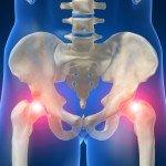 Остеопороз тазобедренного сустава — причины, клиническая картина, лечение