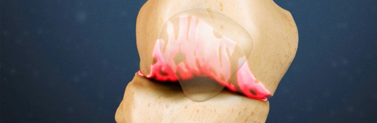 Отложение солей в суставах— причины, симптомы