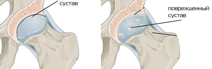Коксартроз тазобедренного сустава: лечение, профилактика