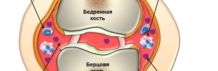 Симптомы и причины ревматизма суставов