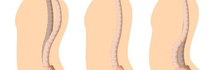 Кифоз грудного отдела позвоночника: причины, симптомы, лечение