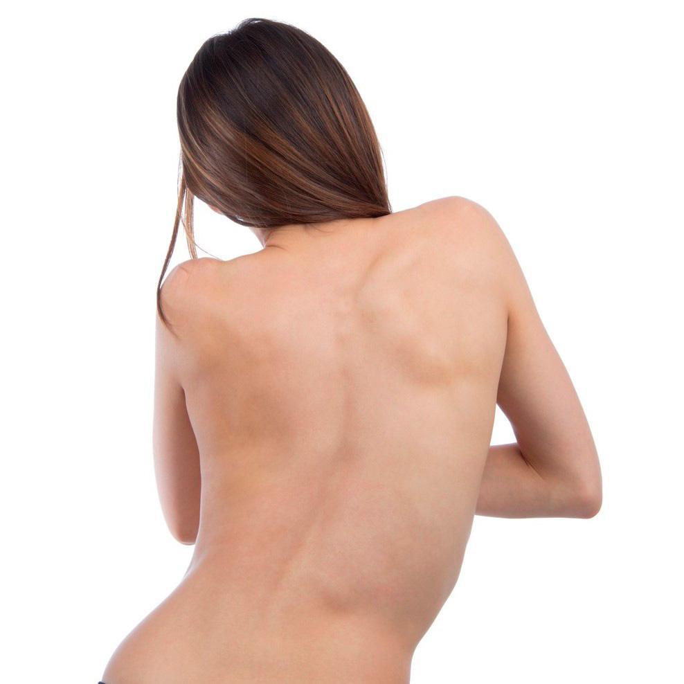Искривление позвоночника: лечение, причины, симптомы