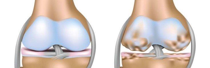Артроз суставов: симптомы, причины, виды