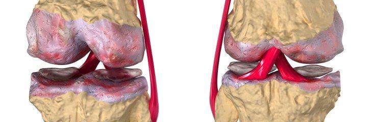 Артроз коленного сустава: симптомы, причины, стадии заболевания