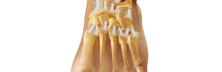 Артроз голеностопного сустава: симптомы, причины, лечение