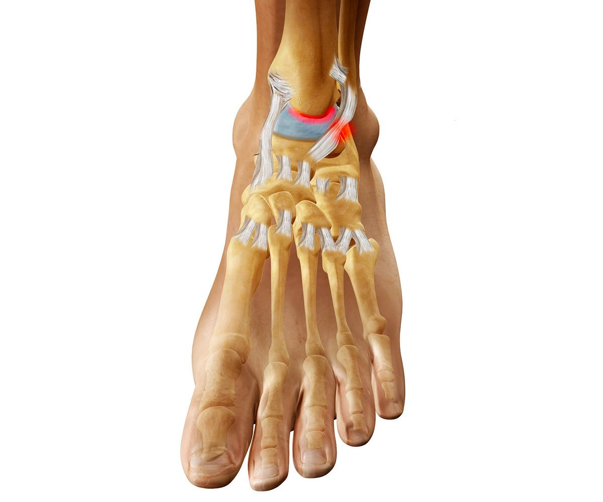 Деформирующий артрит коленного сустава симптомы и