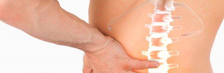Cпондилез поясничного отдела позвоночника— симптомы, лечение