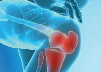 Артрит коленного сустава: симптомы, причины, диагностика