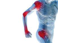 Артралгия: симптомы, виды, причины