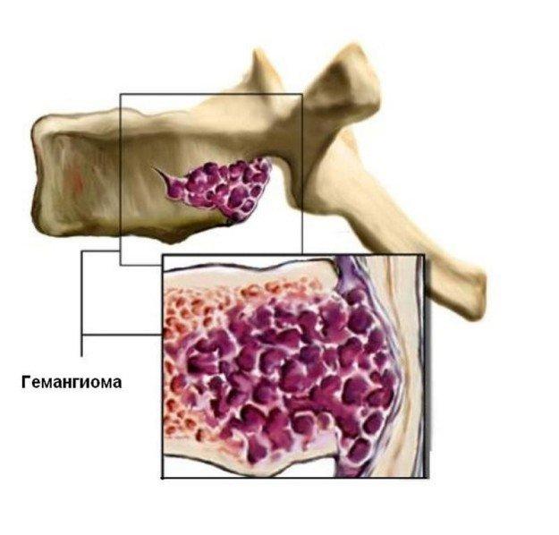 Что такое гемангиома позвоночника, симптомы, лечение и другие особенности заболевания фото