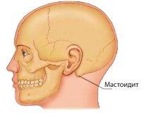 Что такое мастоидит, опасно ли это заболевание