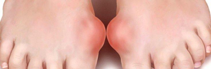 Подагра— причины, симптомы и профилактика