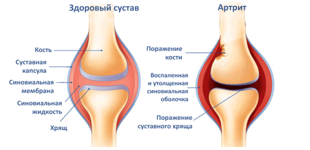 Сустав, поражённый артритом