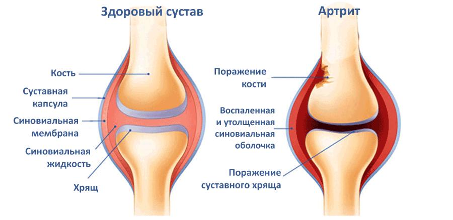 Лечение маклюрой суставов питание суставов м с м