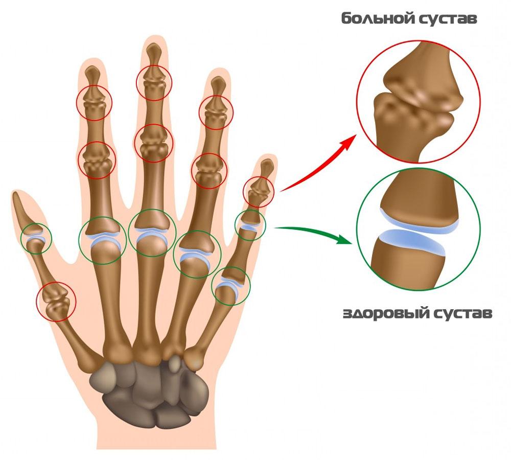 Причины боли в суставах пальцев рук