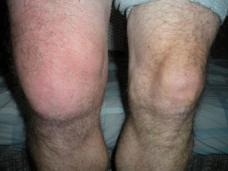 Покраснение коленных суставов фонирование суставов