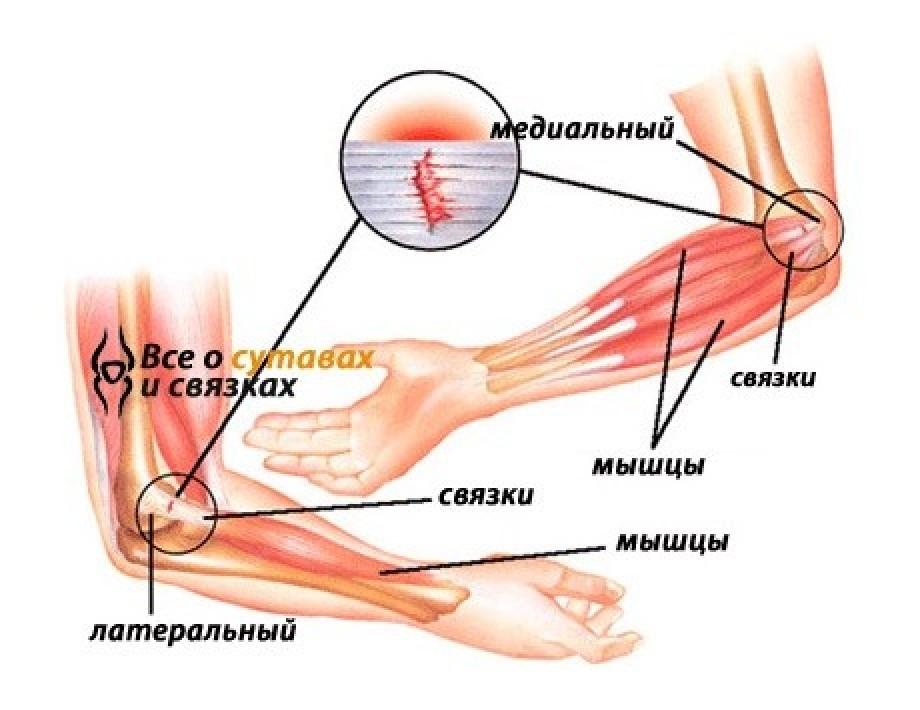 Надрыв мышцы локтевого сустава мкб-10 артроз мелких суставов стопы