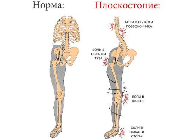 поперечное плоскостопие симптомы