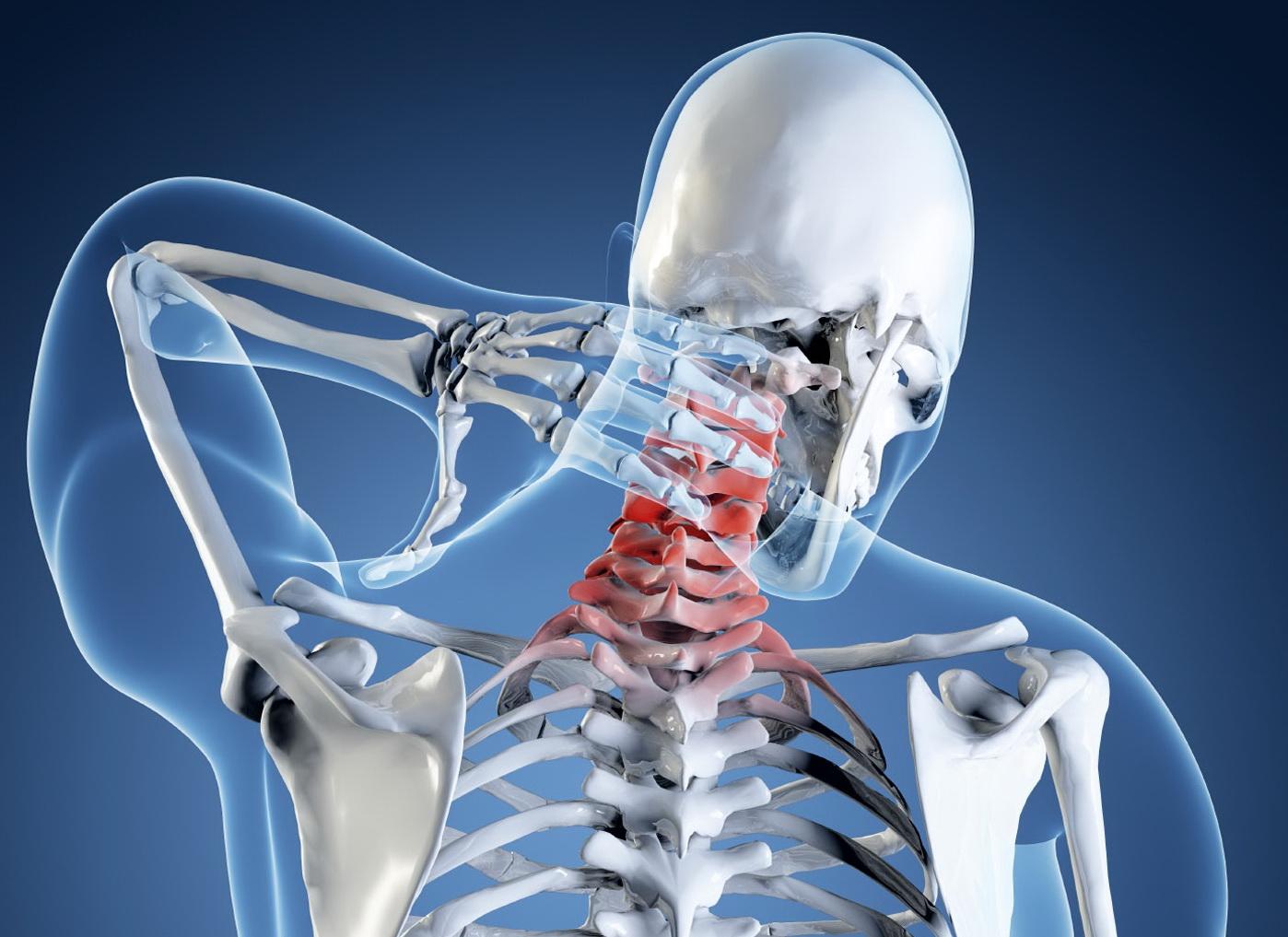 Остеохондроз шейного отдела симптомы головокружение и ком