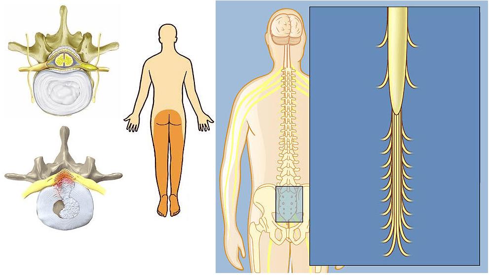Что такое хвост болезнь позвоночника