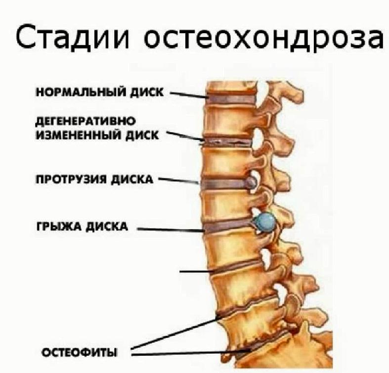 Лечение остеохондроза в грудном отделе в домашних  902