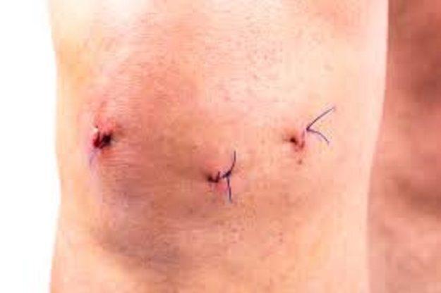 послеоперационные шрамы