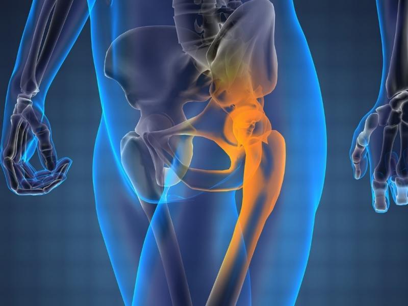 Онемение после эндопротезирования тазобедренного сустава