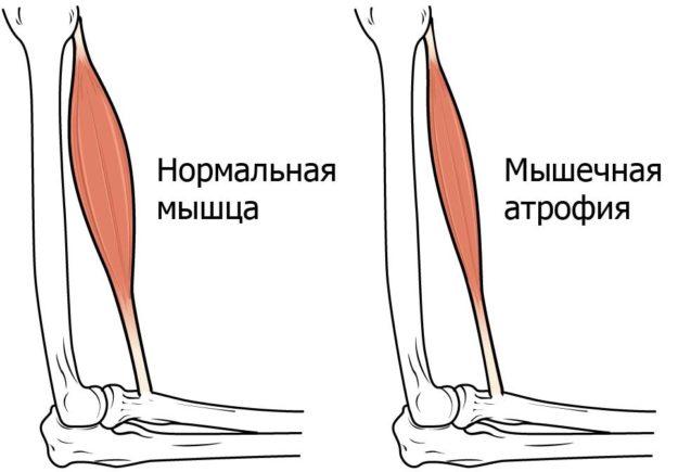 Различие здоровой и атрофированной мышцы