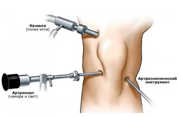 Артроскопическая операция на колене