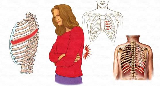 Межрёберная невралгия (миалгия)